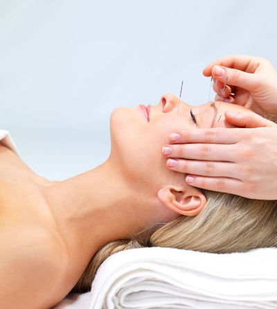 Photograph of patient receiving acupuncture therapy